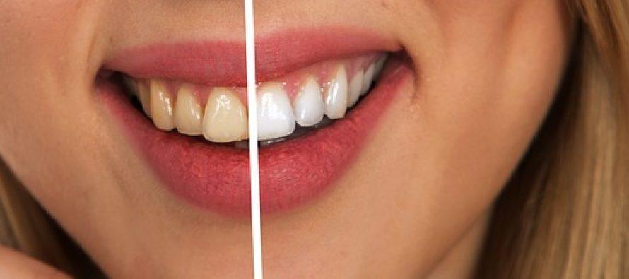 Bezbedno izbelite zube prirodnim preparatima