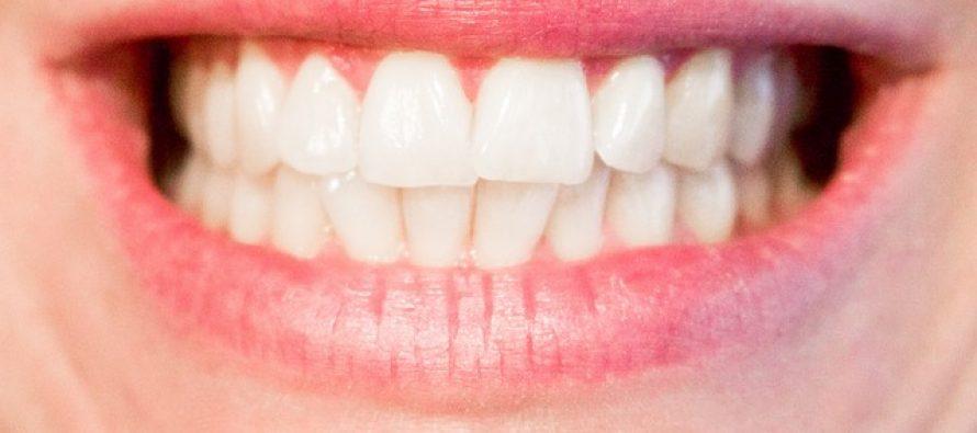 Napravite sami prirodnu pastu za izbeljivanje zuba