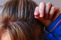Šta određuje boju kose