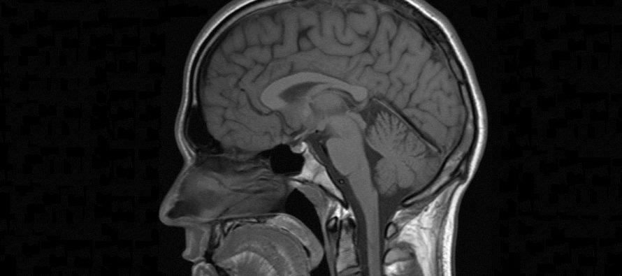 Kako korišćenje marihuane utiče na mozak?