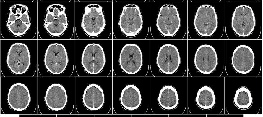 Ovako izgleda mozak osobe obolele od Alchajmera