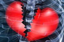 Šta je Sindrom slomljenog srca?